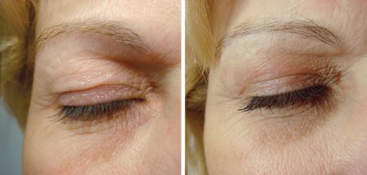 prima e dopo palpebre occhio donna