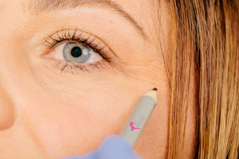 segnare con la matita dermografica i punti di iniezione del botulino dottoressa Giorgia Garofano